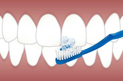 Tri najčastejšie dôvody, prečo sa kazia zuby